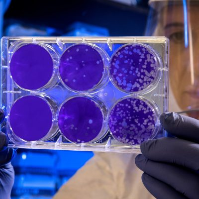 Coronavirus, cosa fare per non morire (di paura)