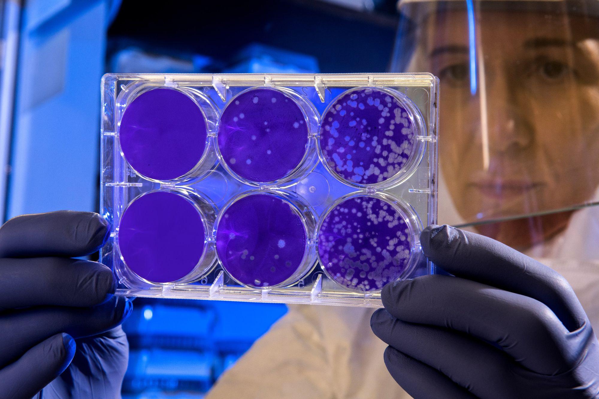 Coronavirus un laboratorio